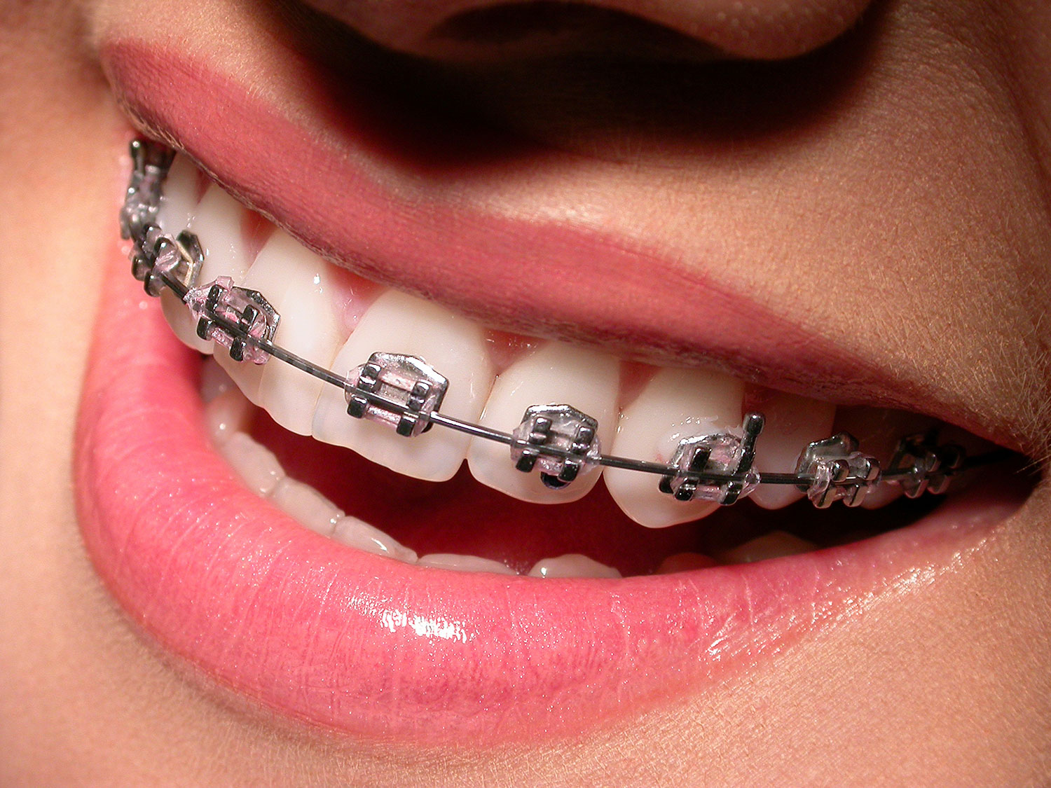 orthodontics nu smile dental dentists east london