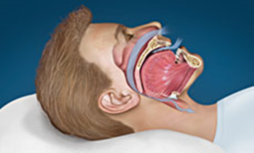 snoring sleep apnea nu smile dental