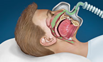 snoring  sleep apnea nu smile dentistry